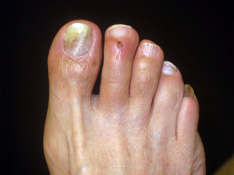 Le unghie più terribili con un fungo di fotografia